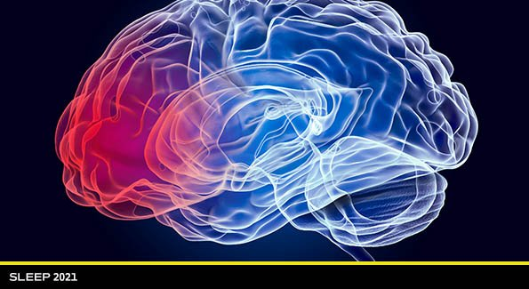 Artificial Intelligence Predicts Brain Age from EEG Signals Recorded During Sleep Studies